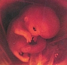 embryo at 8 weeks LMP (6 weeks after conception)